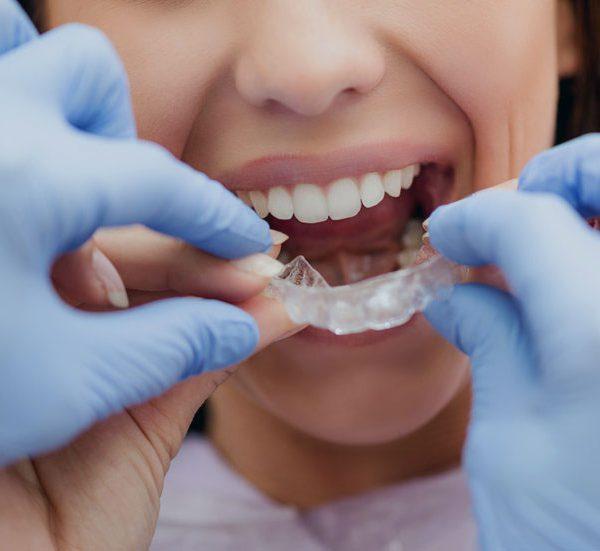 Caso ortodonzia invisalign