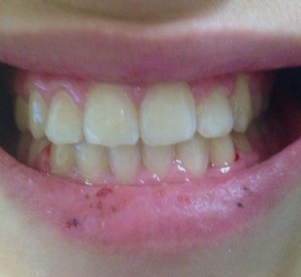 Caso ortodonzia 1