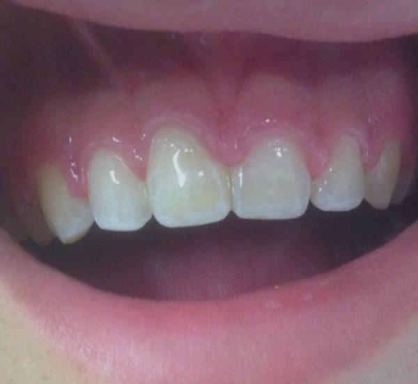 Caso ortodonzia 2
