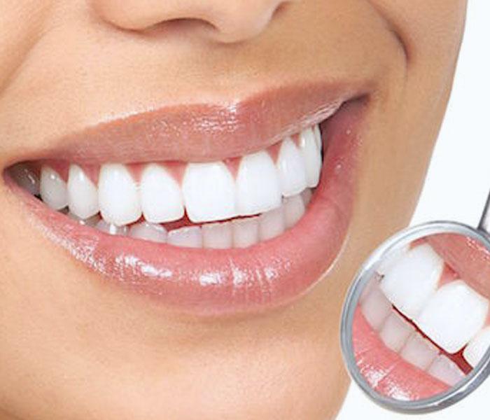 Sbiancamento dentale lugano