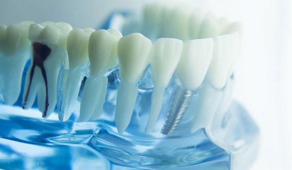 impianto dentale lugano