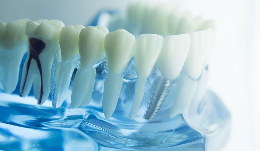 Impianto dentale lugano impiantologia dr tino nyffeler - Diversi tipi di permanente riccia ...