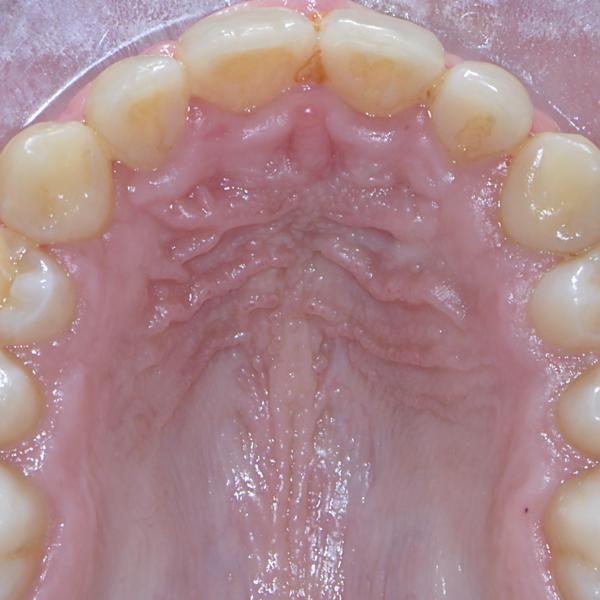 Caso ortodonzia 3